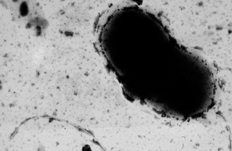 сульфатредуцирующая бактерия Desulfovibrio vulgaris